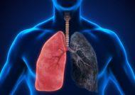 درمان و علایم سرطان ریه