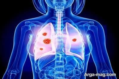 افراد در معرض خطر سرطان ریه