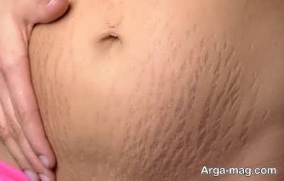 رفع ترک شکم در دوران حاملگی