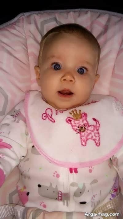 ورم سر نوزاد ناشی از فشار وارده هنگام زایمان