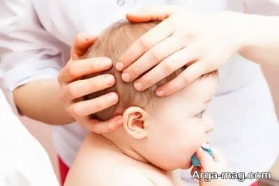 ورم سر نوزاد به دلیل فشار در هنگام زایمان