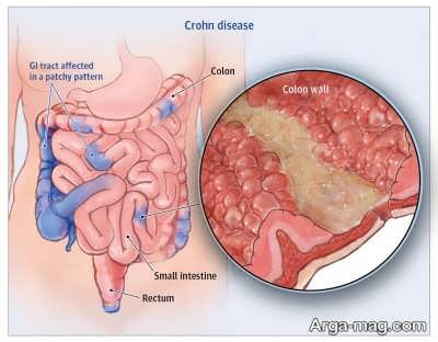 بیماری التهاب روده در کودکان
