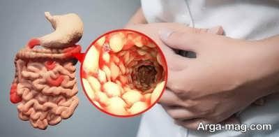 بررسی التهاب روده در کودکان