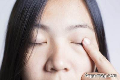 روش های درمان پف چشم