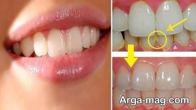 راه های از بین بردن پلاک دندان