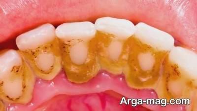 پلاک دندان چگونه ایجاد می شود