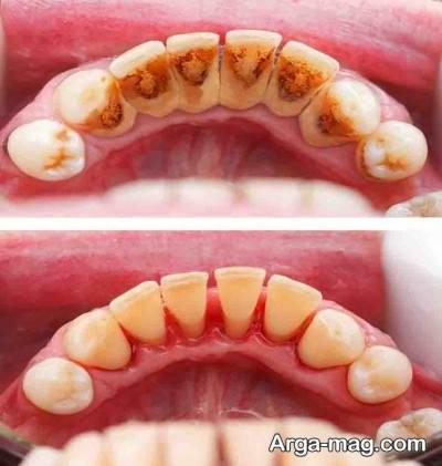 رفع جرم و پلاک دندان