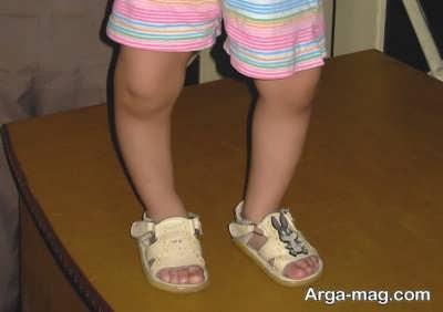 چگونگی حل شدن مشکل نرمی پاهای کودکان