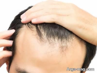 راه های درمان ریزش مو ارثی