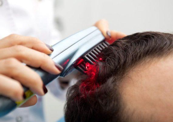 شیوه های مختلف برای درمان ریزش مو ارثی