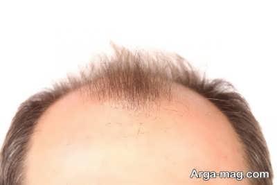 ریزش موها از نوع طاسی