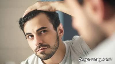 چگونگی درمان ریزش مو ارثی