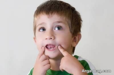 مراحل درمان کندی زبان کودکان
