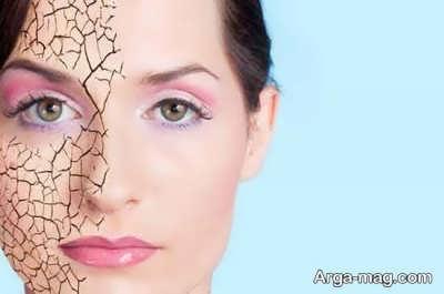 جلوگیری از خشکی پوست در فصل زمستان