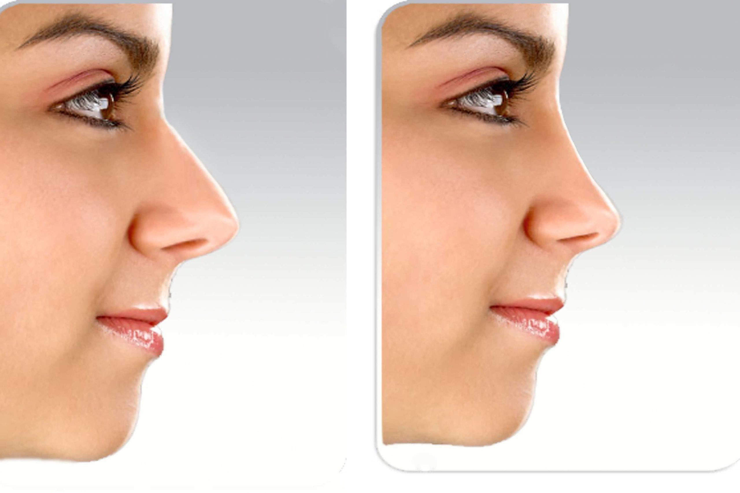 نحوه کوچک کردن بینی در فتوشاپ