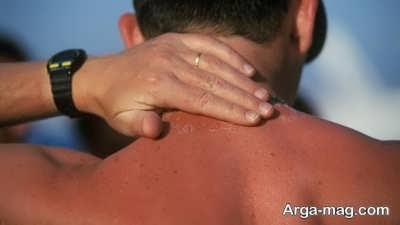 پیشگیری از آفتاب سوختگی با راهکارهای طبیعی