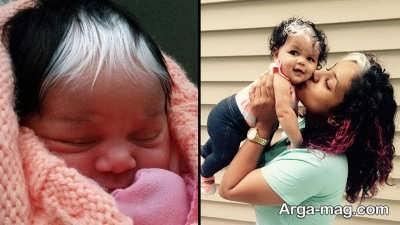 چگونگی درمان سفید شدن موی کودک
