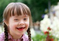 بیماری و اختلال سندروم دان