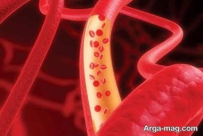تقویت گردش خون با چند توصیه عالی در خانه