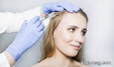 تزریق بوتاکس در پوست سر