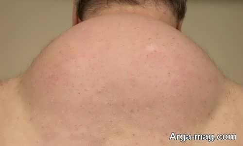 قوز گردن تاثیرات مستقیمی روی قوز کمر دارد.