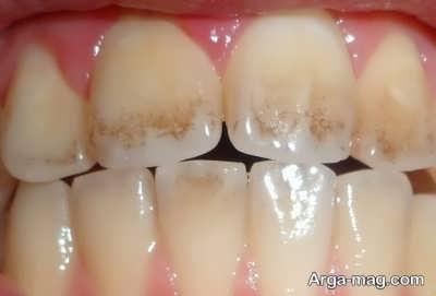 انواع روش مقابله با پوسیدگی دندان