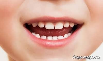 روش های کاربردی در پیشگیری از پوسیدگی دندان