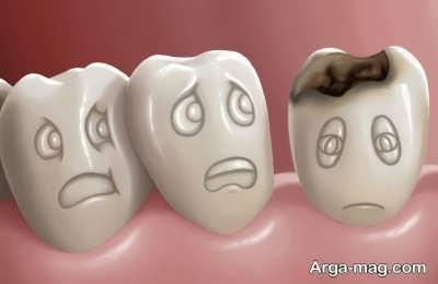 پیشگیری کردن از پوسیدگی دندان