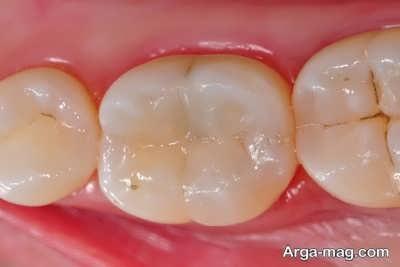 پیشگیری نمودن از پوسیدگی دندان