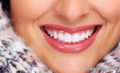 روش های جلوگیری از پوسیدگی دندان