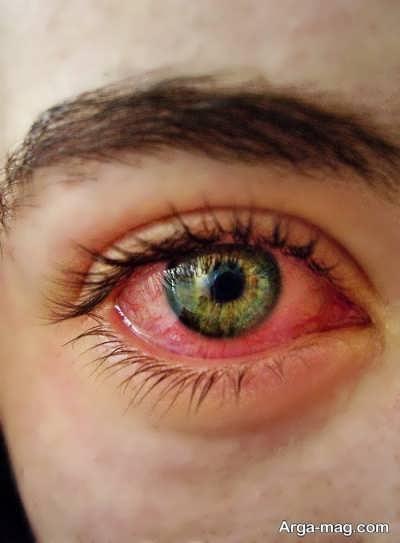 قرمزی مویرگ های چشم از علائم مصرف گل