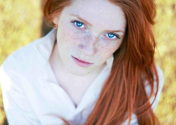 درمان لکه های قهوه ای پوست