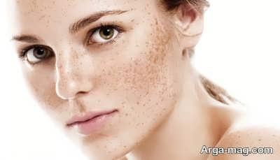 پاک کردن لکه های قهوه ای بر روی پوست