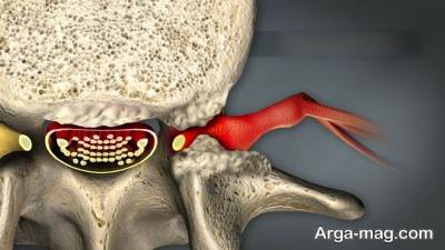 نشانه های تنگی کانال نخاعی