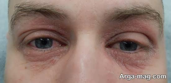 علاوه بر استفاده از ماسک روشن کندده دور چشم می توان از لیزر هم استفاده کرد