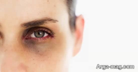 پاک کنندگی عمیق از مزای استفاده از ماسک روشن کننده دور چشم است.