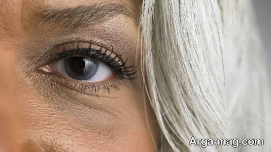 سیاهی دور چشم را می توان با اسفناج درمان کرد