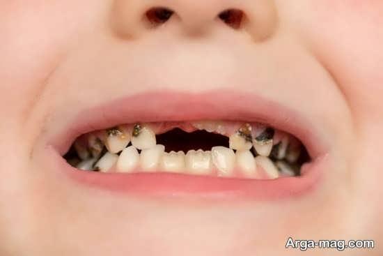 درمان سیاهی دندان اطفال