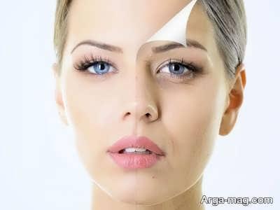 انواع لایه موجود در پوست