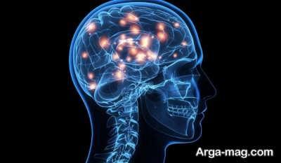 راه های درمان بیماری های اختلالات عصبی