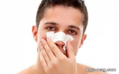 مواد مغذی بعد از عمل بینی