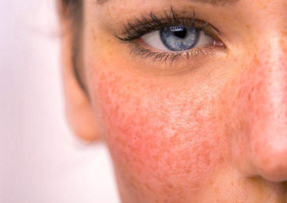راهکارهای رفع قرمزی پوست صورت