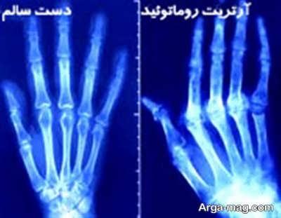 علت و درمان آرتریت روماتوئید