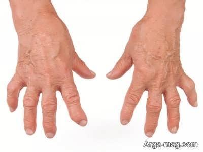 درمان آرتریت روماتوئید