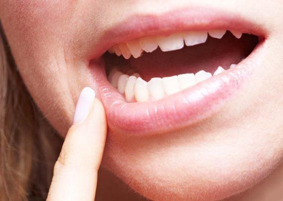 علت های پوسیدگی دندان