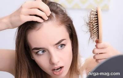 ریزش مو به خاطر ارثی بودن