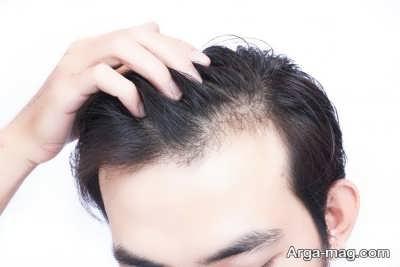 نحوه ریزش مو ارثی