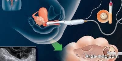 بررسی تلقیح داخل رحمی اسپرم