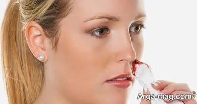 علت خون ریزی بینی در بارداری