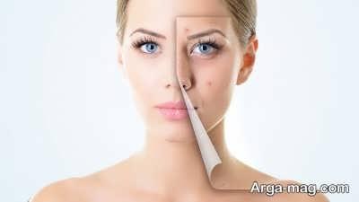 نرم شدن پوست با راهکار های گفته شده